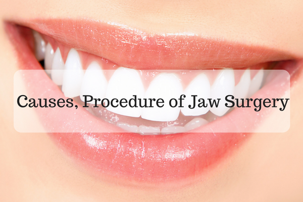 Causes, Procedure and recovery of corrective Jaw Surgery